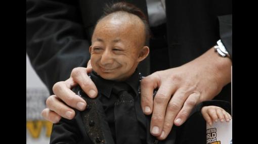 He Pingping, el hombre más pequeño del mundo, falleció en Roma
