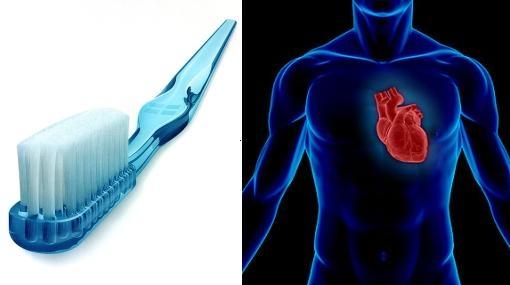 Cepillarse los dientes puede prevenir infartos