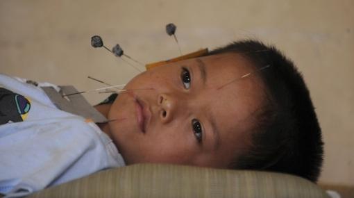 Descubren el mecanismo por el que la acupuntura alivia el dolor