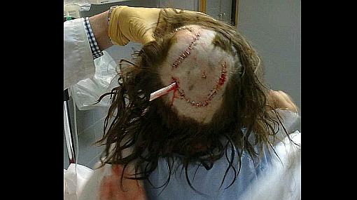 Una niña de seis años recibió 50 puntos en la cabeza tras ser atacada por un rottweiler
