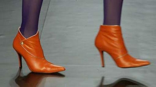 El uso frecuente de tacones causa dolor en la planta de los pies, en los dedos y forma juanetes