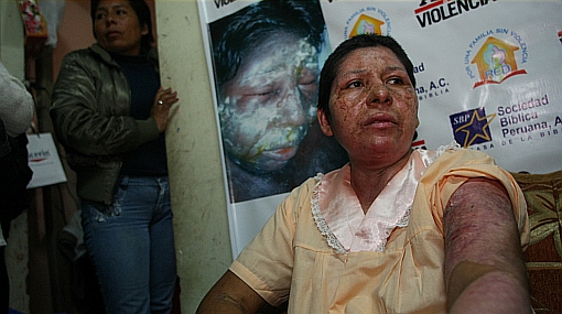 Sujeto que quemó a su pareja con agua hervida será procesado por lesiones graves