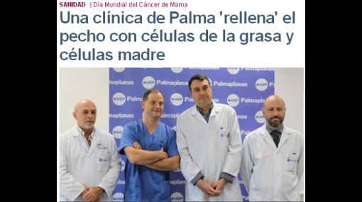 Proeza médica: usan células madre para reconstruir los pechos a enferma de cáncer