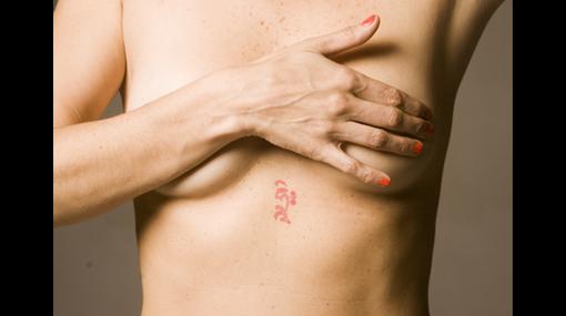 Crean gel que reconstruye la mama tras extirpar tumor cancerígeno