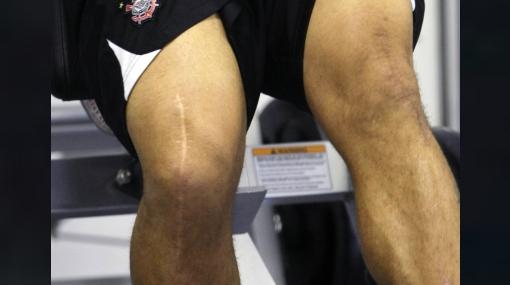 Las rodillas de Ronaldo tras 18 años de duras batallas