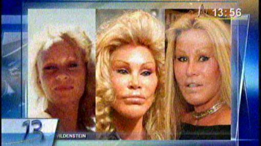 VIDEO: diez estrellas que deformaron sus rostros por las cirugías