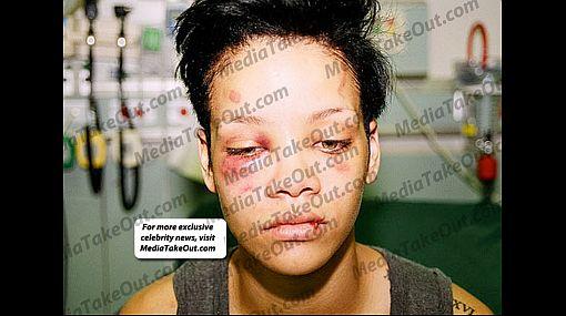Nuevas fotos revelan lo brutal de la golpiza que recibió Rihanna el 2009