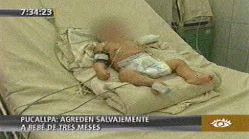Bebe de tres meses fue golpeada y se encuentra en hospital de Pucallpa