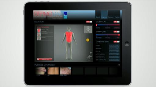 Una aplicación para el iPad ayuda a detectar enfermedades de la piel