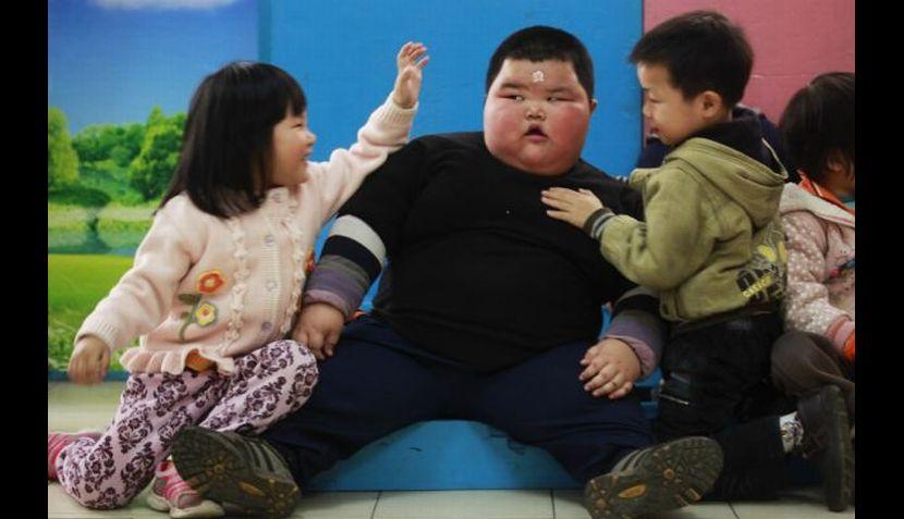 Dos de cada tres niños con obesidad severa sufren riesgo cardiovascular
