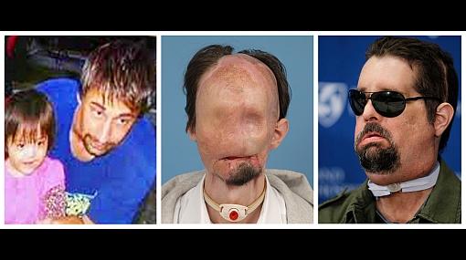 """Primer transplante completo de rostro en EE.UU: """"Me pasan cosas buenas desde entonces"""""""