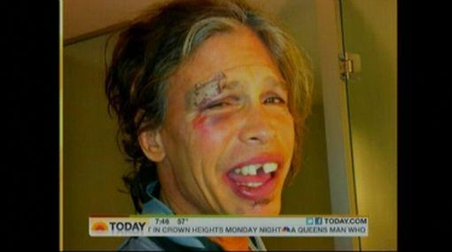 ¿Steven Tyler estaba drogado cuando sufrió aparatosa caída?