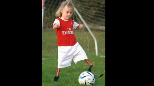 Ejemplo de vida: no tiene piernas ni brazos pero juega fútbol