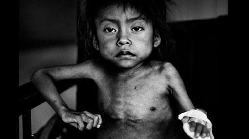 Estas son las tres fotos del año, según Unicef