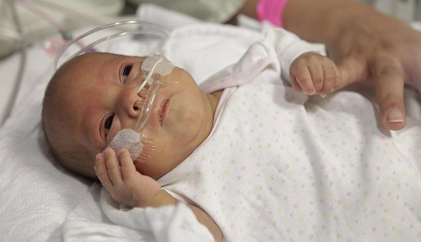 Melinda, la bebe que no era más grande que una mano y hoy le sonríe a la vida