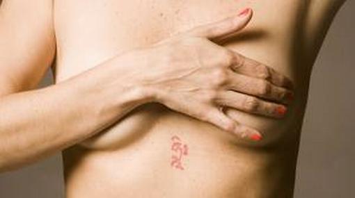 Médicos extirparon tumor mamario de 8 kilos a una joven ayacuchana