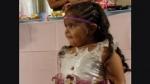 'Niña sirenita' necesita urgente operación para seguir viviendo - Noticias de cerron villanueva