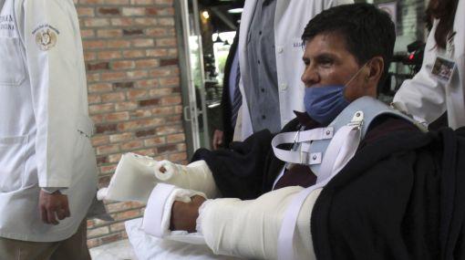 México culminó con éxito el primer trasplante de brazos de Latinoamérica