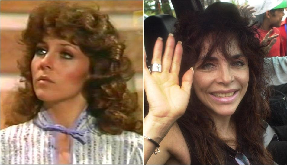 FOTOS: famosos antes y después de someterse a cirugías plásticas