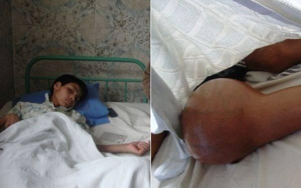 Huánuco: menor con tumor en la rodilla pide ayuda para ser tratado en Lima