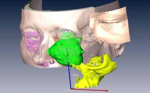 Cirujanos extrajeron parte del rostro de una mujer con cáncer y lo reconstruyeron con un escáner 3D