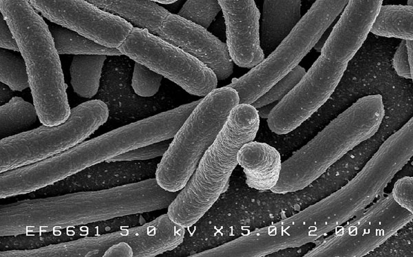 Una bacteria que causa problemas estomacales sirve para hacer gasolina